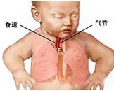 小儿肺炎(其他名称:小儿急性肺炎,小儿急性支气管肺炎)
