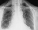 惡性腫瘤胸腔積液怎么辦