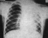支气管肺炎发热的症状表现有哪些