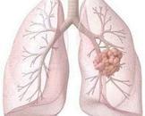 妈妈二十多年的肺结核还传染吗