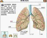 肺炎能转变肺脓肿吗 剖析肺炎和肺脓肿的关系