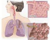 肺气肿有哪些并发症 如何进行鉴别诊断呢