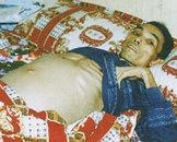 大三阳患者肝功正常怎么治疗