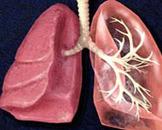 肺炎支原体感染是什么情况 久咳就一定是肺炎吗