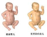 新生儿胆红素脑病