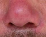 酒糟鼻怎样形成的