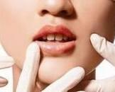 口干综合症要治疗多久