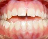 牙龈炎是什么引起的呢