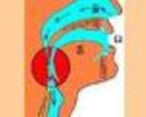 咽部异物感