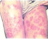 什么物质诱发接触性皮炎