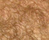 阴毛早发育