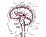小脑扁桃体下疝畸形