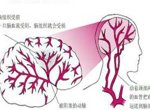 治疗短暂性脑缺血发作的两种中医食疗妙方