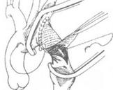 先天性主动脉缩窄