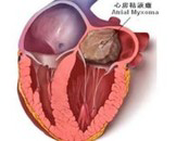 心脏粘液瘤