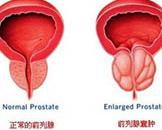 前列腺囊肿
