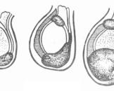 男性生殖系结核