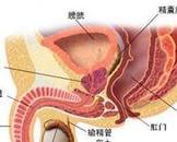 慢性前列腺炎