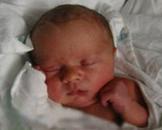 新生儿低钙血症