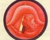喉癌(其他名称:喉疳)