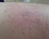 夏季皮炎(其他名称:夏令皮炎)