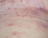 细菌性皮肤病