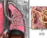 急性呼吸窘迫综合征