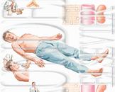 低钾性周期性麻痹的病因有哪些 低钾周期性麻痹两个病因浅析