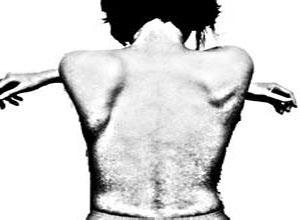 肩胛骨突出