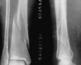 螺旋形骨折