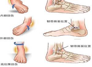 大腿韧带拉伤怎么办 韧带拉伤要注意预防