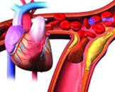 心肌梗死护理措施介绍