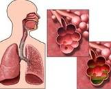 慢性阻塞性肺病可以跑步吗