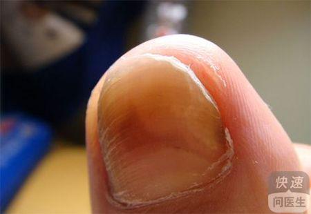 灰指甲的治疗方法 丁克