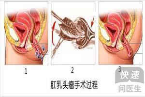 乳头瘤治疗