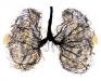 肺癌最好的治疗方法
