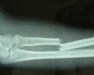造成骨折的常见原因是什么
