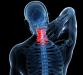 颈椎病为什么会引起头痛