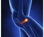 如何有效的预防骨性关节炎发生