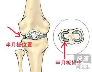 膝关节半月板损伤有哪些症状表现