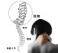 颈椎老疼就是颈椎病  正确认识才能科学诊治
