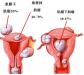子宫肌瘤常见的症状都有哪些