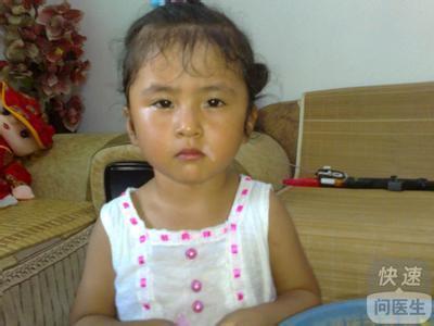 小孩身上长白斑该怎么治疗 揭秘儿童白癜风的治疗方法图片