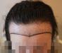 北京植发的手术费用是多少