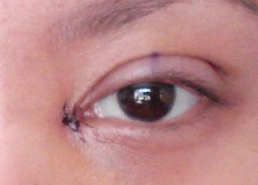 开眼角手术后流眼泪