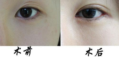 韩式双眼皮过程怎么做