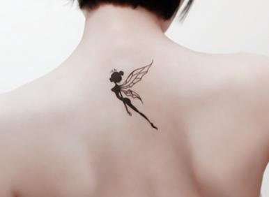 洗纹身最好的方法:激光治疗法