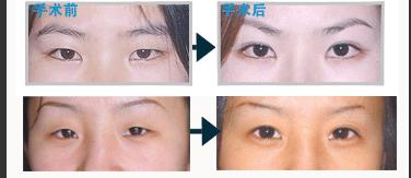 双眼皮手术前后图片对比