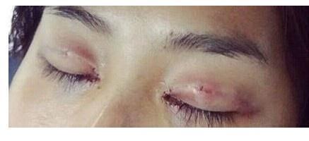 双眼皮恢复过程图解
