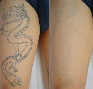 很多纹过身的人就想把纹身洗掉